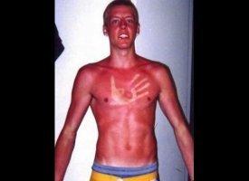 FAIL!!! Sun burns
