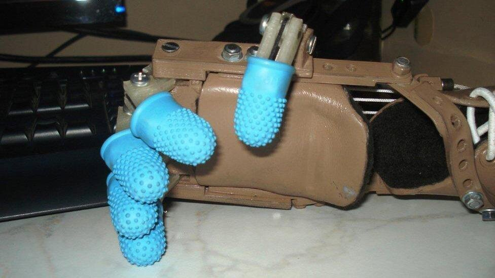 A Mechanical Prosthetic Hand That Can Be 3D Printed at Home