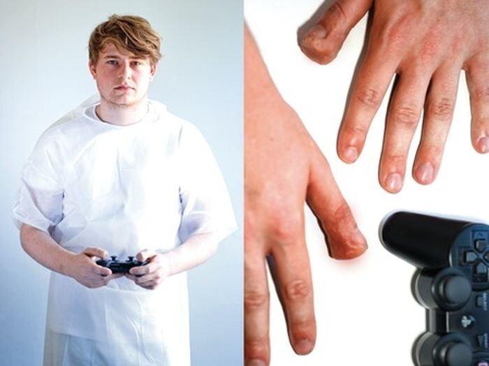 Медицинские проблемы из-за видеоигр (10 фото)