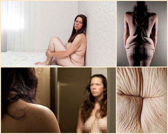 Жизнь после потери веса (11 фото)