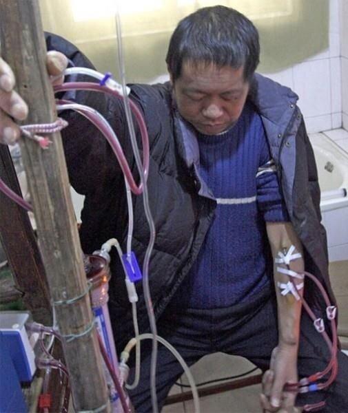 Китайский крестьянин живет 13 лет на искусственной почке (2 фото)