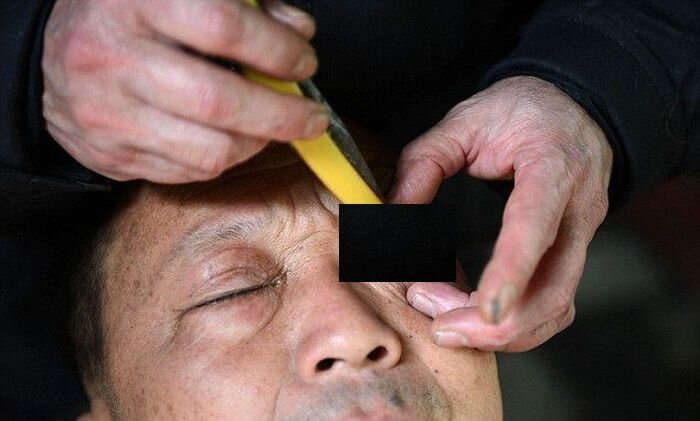 Китайское чистка глазных яблок (4 фото)