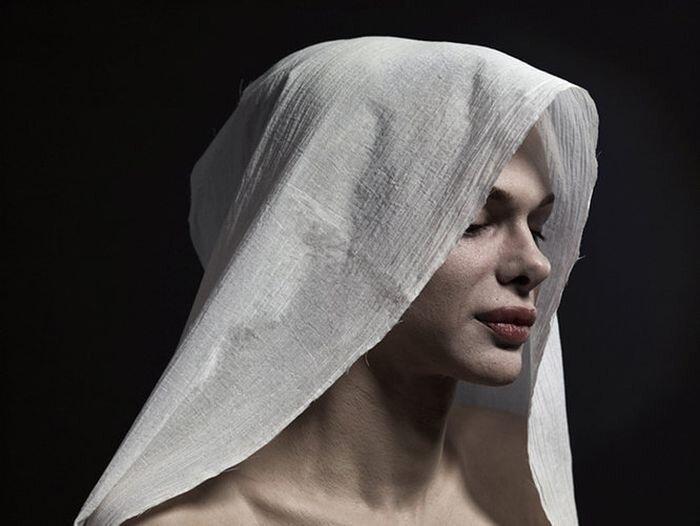 Откровенные портреты жертв пластики (12 фото)