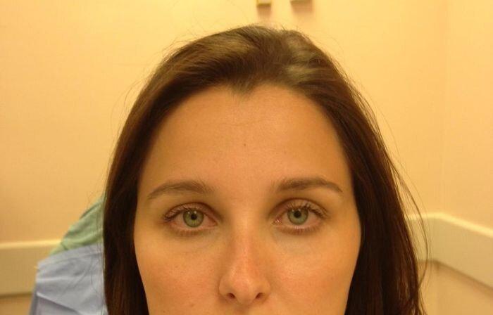 После укуса собаки за лицо (6 фото)