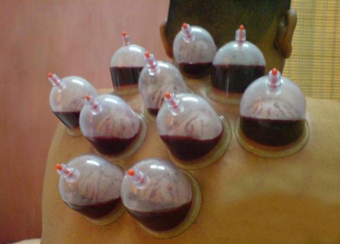Хиджама - лечение кровопусканием (14 фото)
