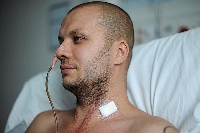 Велосипедист попал в больницу с пробитой шеей (3 фото)