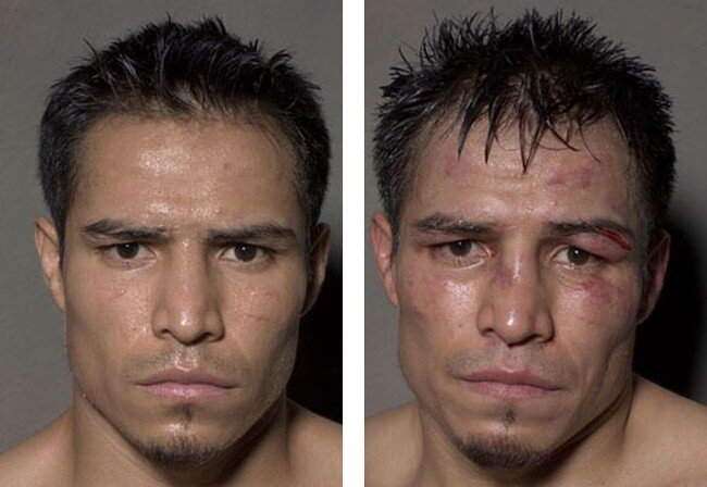 Боксеры после боя (12 фото)