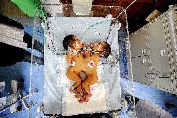 Операция по разделению сиамских близнецов (6 фото)