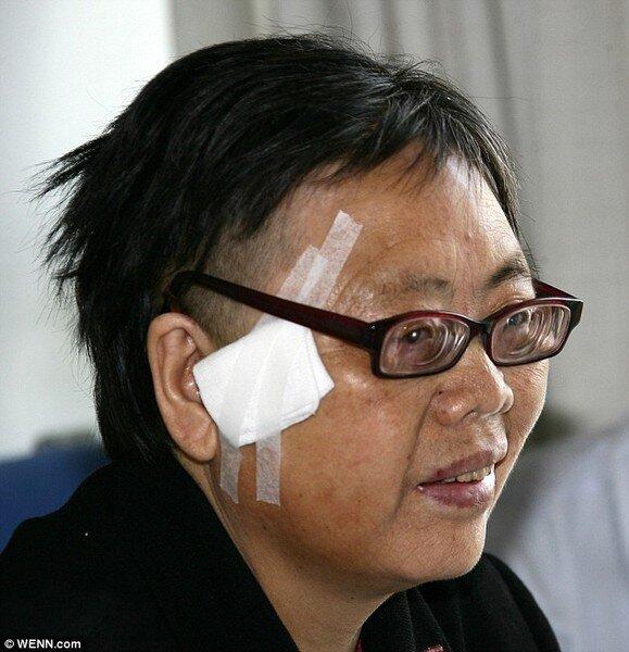 Пуля находилась в голове женщины 42 года (3 фото)