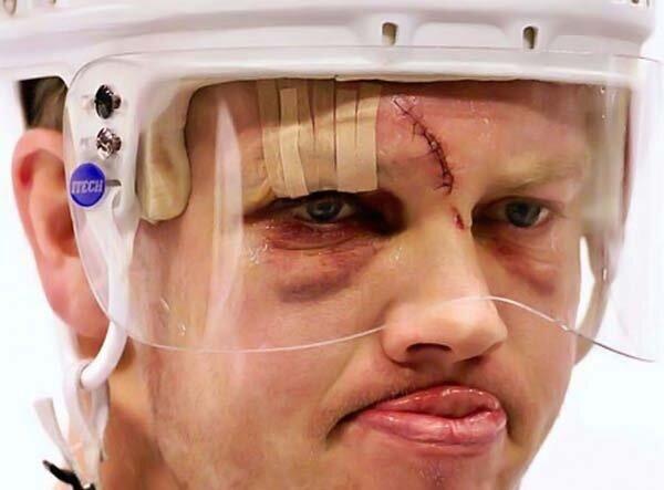 Трус не играет в хоккей (6 фото)