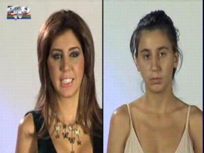 Румынское телешоу. До и после пластической операции (31 фото)