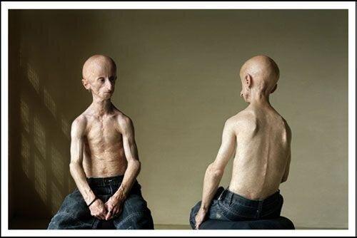 Редкая болезнь Leon Botha (52 фото)
