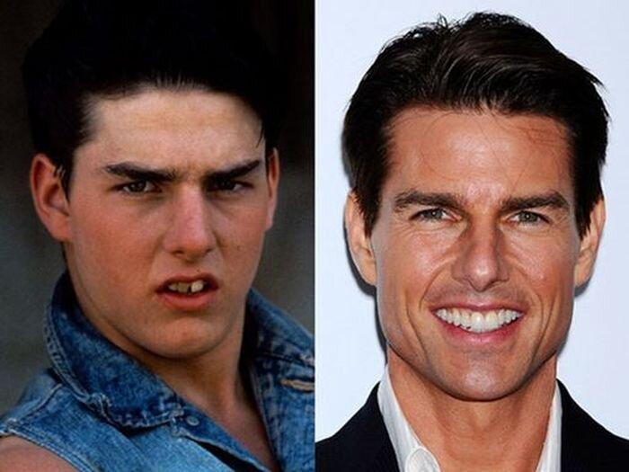 Звездные улыбки: до и после (10 фото)