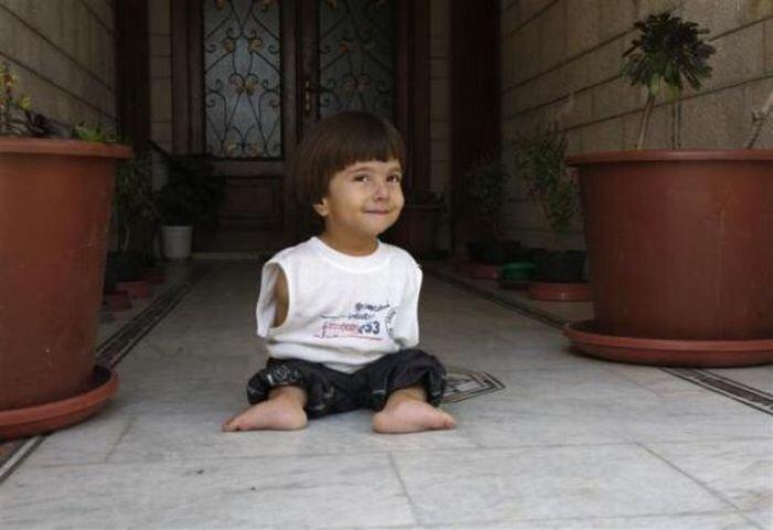 Мальчик без рук не отчаивается (13 фото)
