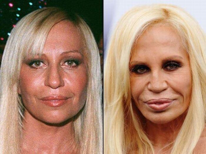 Знаменитости до и после пластических операций (21 фото)