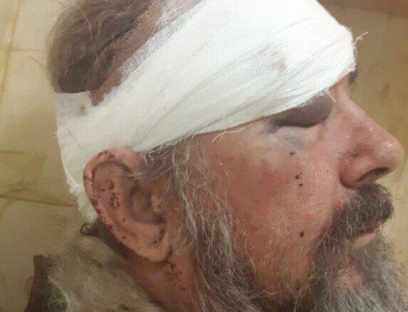 На Кубани пенсионера, избитого полицейским, заставили заплатить штраф
