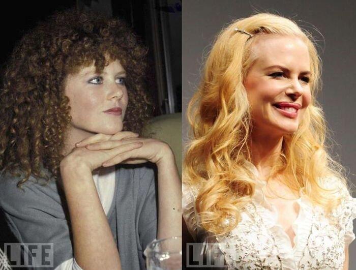 Знаменитости до и после пластической операции (45 фото)