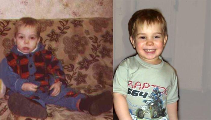 Дети до и после усыновления (54 фото)