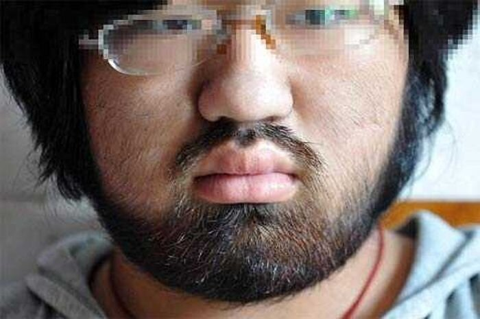 A 16 year-old Girl has Beard like a Man