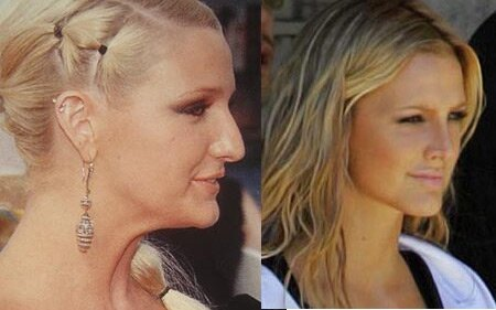 Can you believe they had plastic surgery?