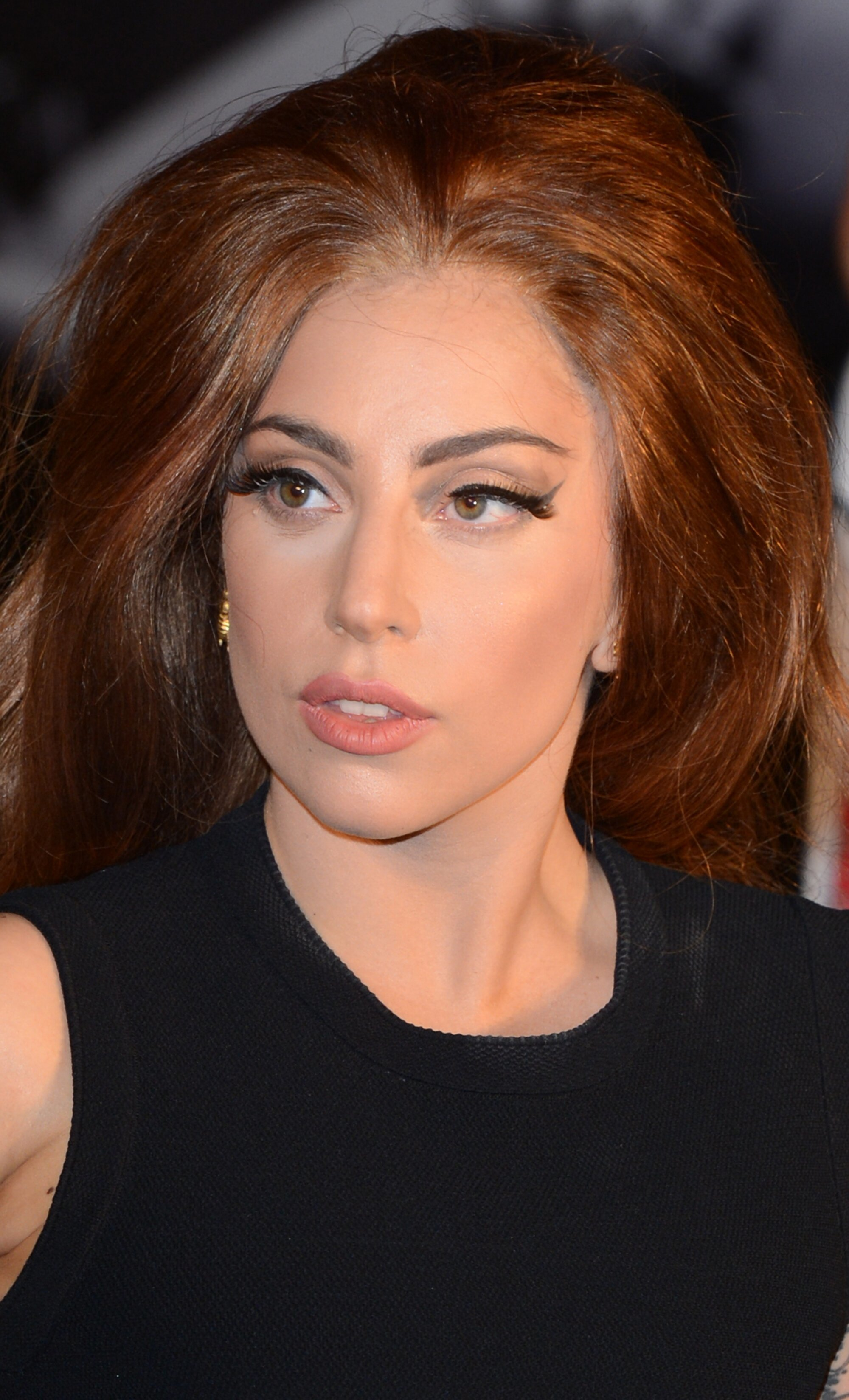 Gaga Needs Hip Surgery, Cancels The Tour!