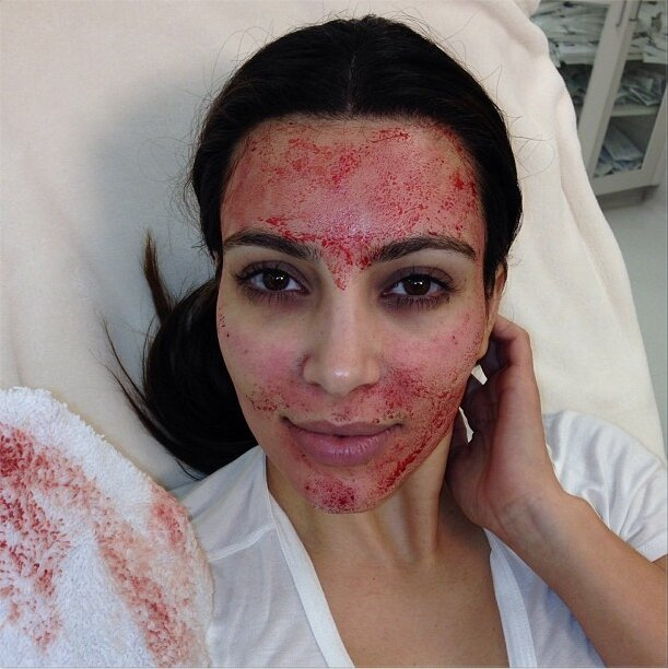 Kim Kardashian Covered In Blood