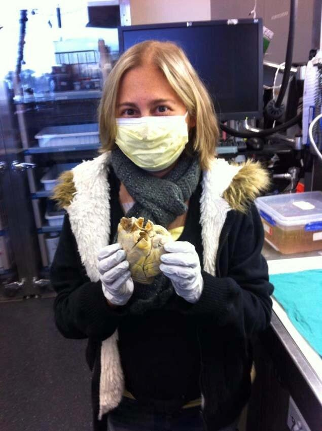 Heart Transplant Patient Penny Smith Holding Her Own Heart