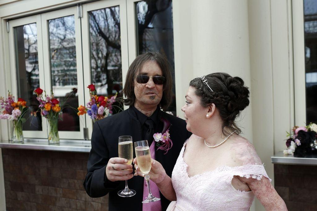 Face Transplant Recipient Dallas Wiens Gets Married