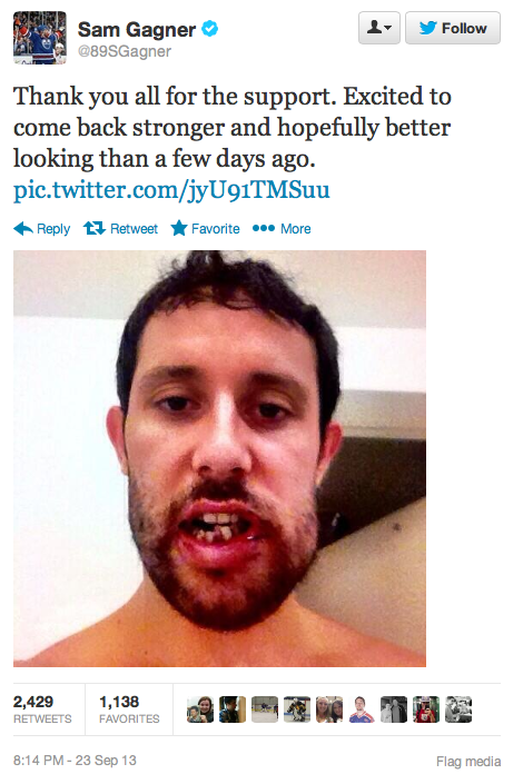 A Stick To The Face Turned Edmonton Oiler Sam Gagner Into A Monster