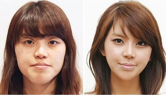 Plastic surgery in South Korea: before and after