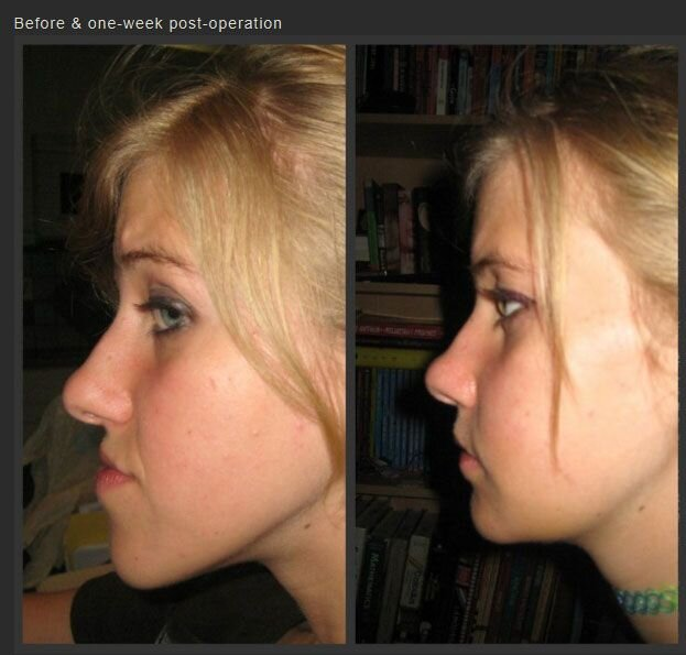 Life Changing Jaw Surgery