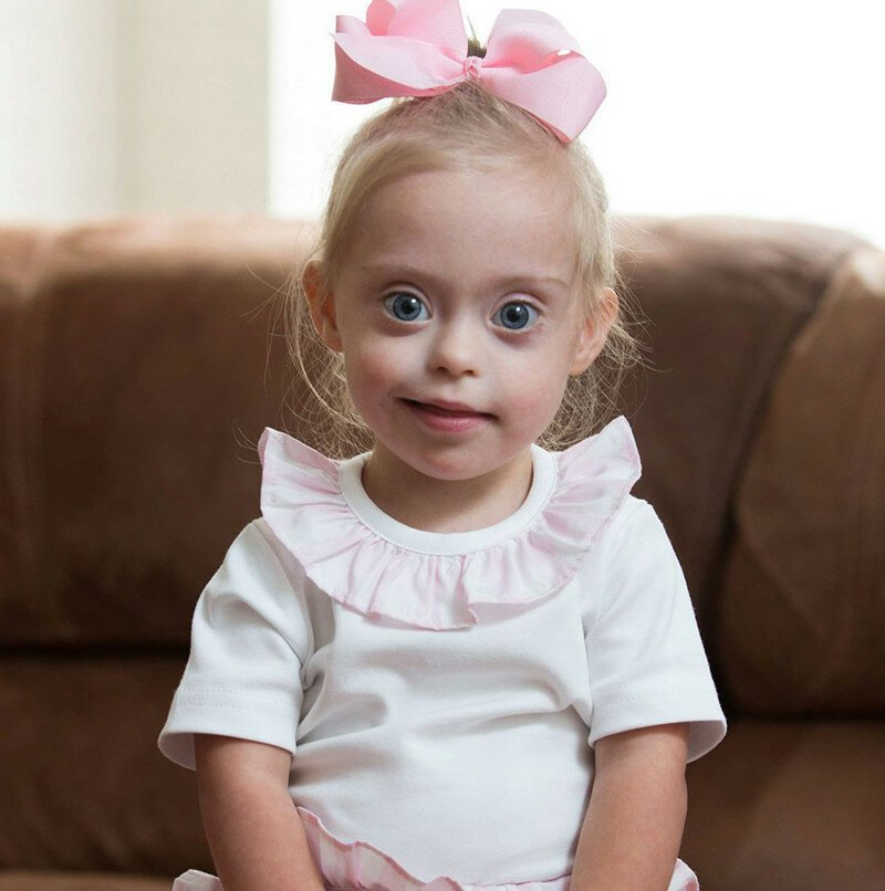 2-Year-Old Girl With Down Syndrome Wins Modeling Contract
