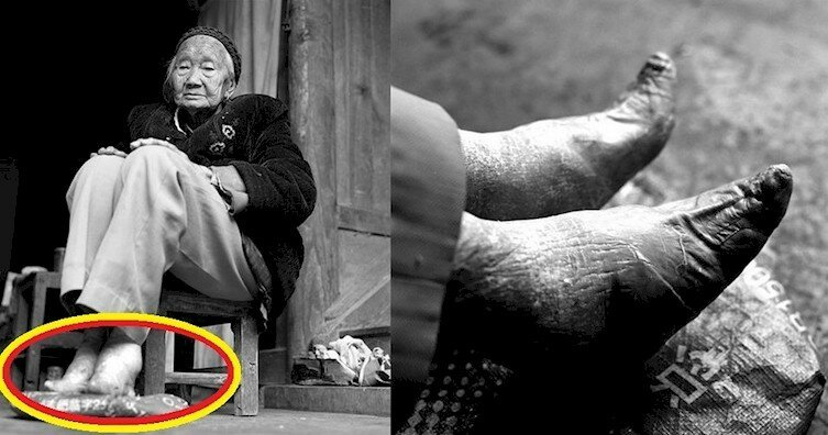 These Are The Last Women With Bound Feet In China