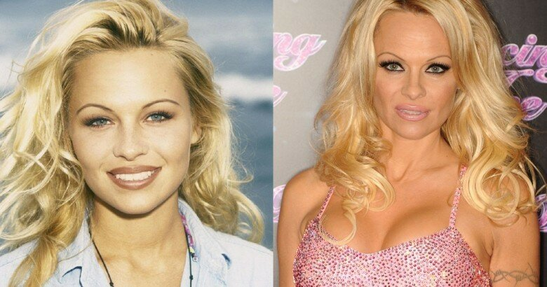 12 Celebrities Who Looked Better Before Going Under The Knife