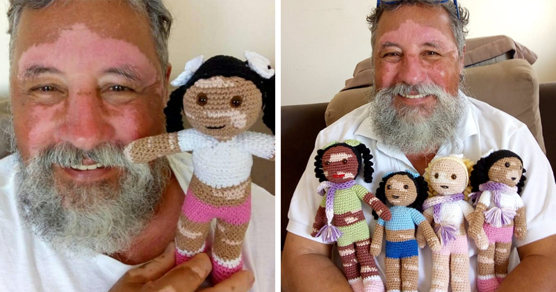 Grandpa With Vitiligo Crochets Dolls To Encourage Kids Who Suffer From This Condition