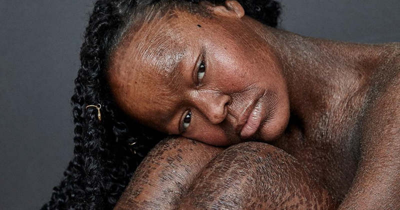 This Woman Never Saw Models With Her Skin Condition, So She Became One