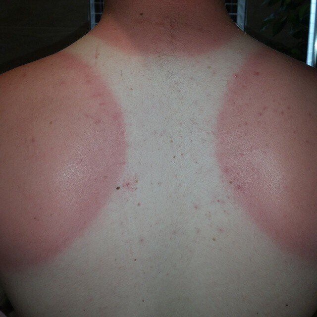 16 причин не наносить крем от солнца