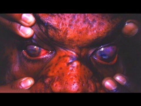 Самые страшные болезни-убийцы человечества