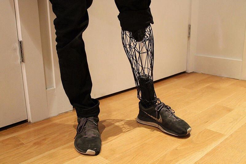 Каркасный протез из титана, распечатанный на 3D-принтере, может совершить революцию в цене протезов