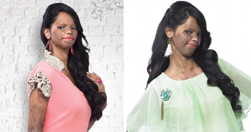Девушка, которую облили кислотой, стала представлять модный бренд в Индии