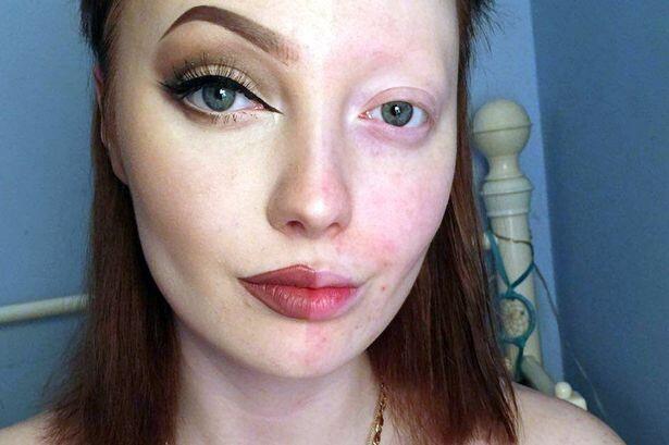 """Интернет-тролли высмеяли и обозвали онкобольной девушку, запостившую селфи с """"половинным"""" макияжем"""