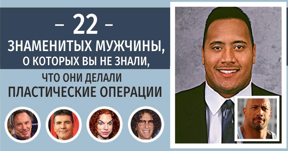22 знаменитых мужчины, о которых вы не знали, что они делали пластические операции