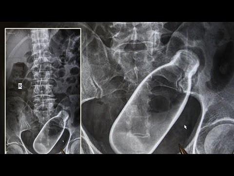 10 самых шокирующих рентген снимков. Часть 2
