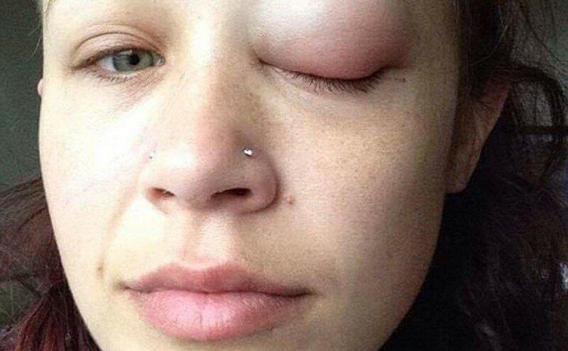 Канадская модель начала слепнуть, сделав татуировку на глазу