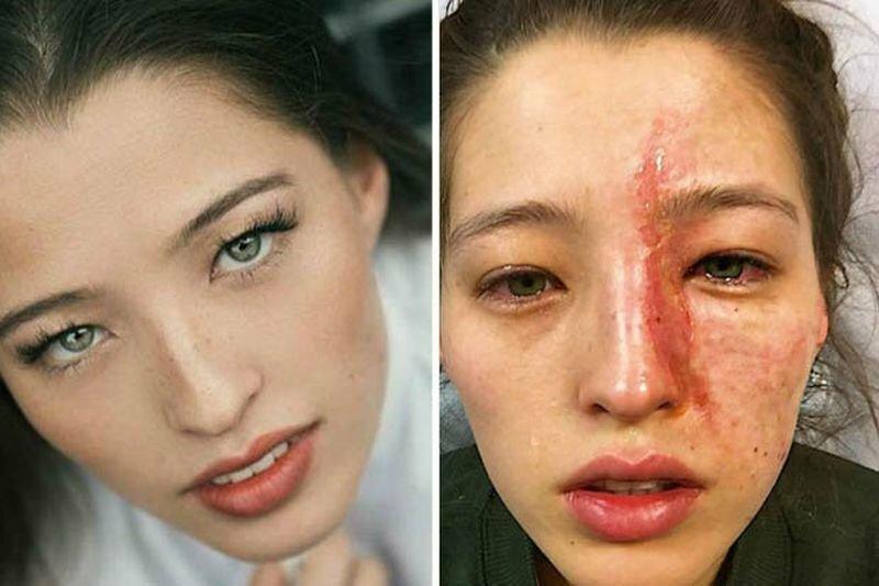 Девушка получила ожог лица используя увлажнитель воздуха с эфирными маслами