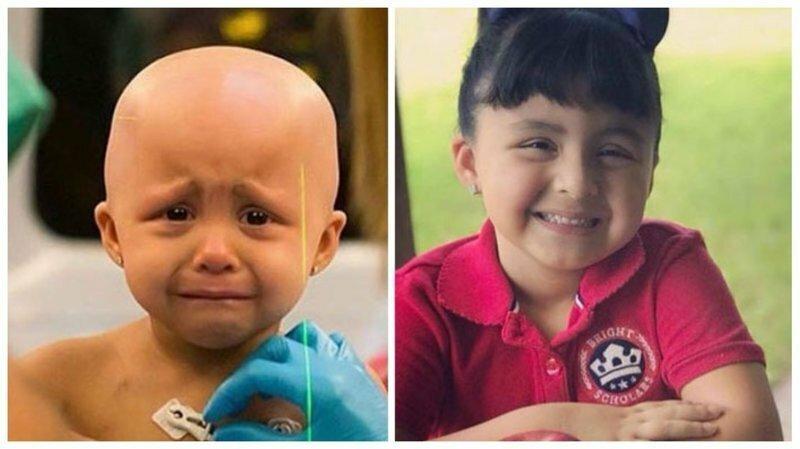 """Люди, которые боролись с раком и победили: снимки """"до"""" и """"после"""""""