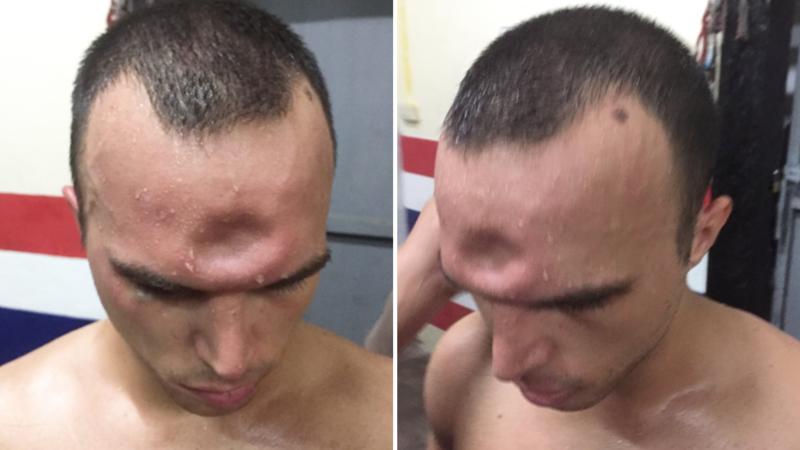 Боксер получил необычную, но очень показательную травму