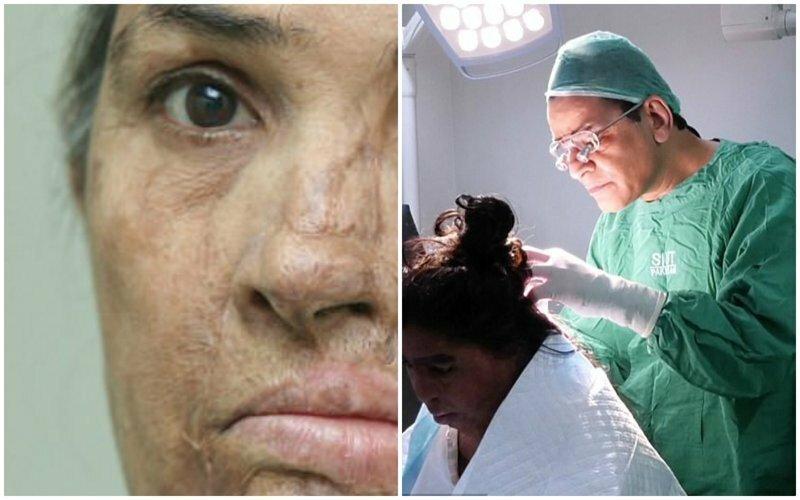 Британский хирург делает бесплатные операции жертвам кислотных атак из Пакистана