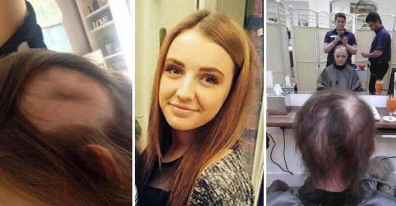 В 19 лет девушка осталась без единого волоска на голове и теле