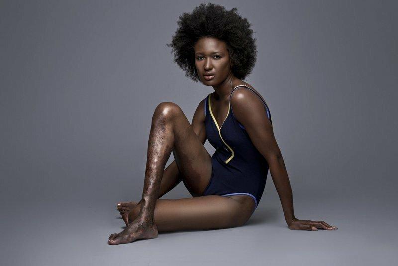 Болезнь ноги не помешала гаитянке стать моделью